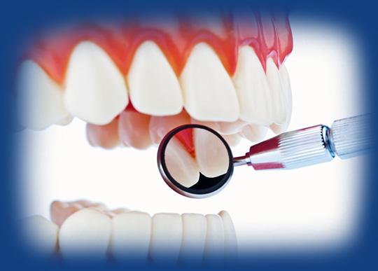 Dental Bridges at Smile4ever