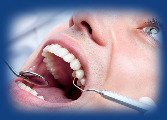Dental Cleaning at Smile4ever