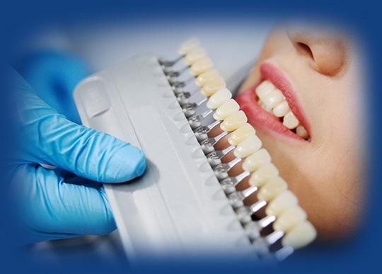 Dental Fillilng at Smile4ever