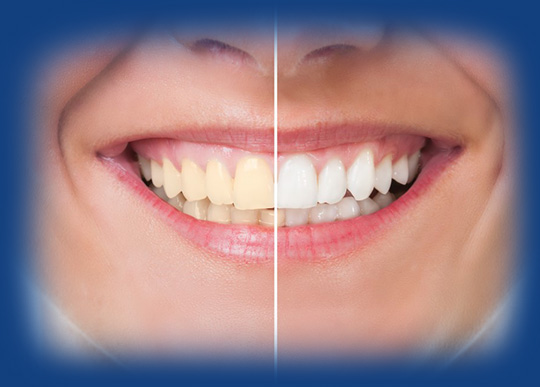 Teeth Whitening at Smile4ever